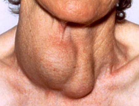 Hipertiroidisme: Diagnosis dan Tatalaksana