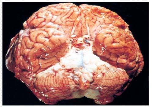 otak meningitis
