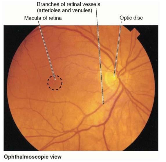 Gambar 3. Penampakan fundus melalui optalmoskop.1