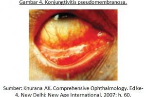 Infeksi pada Mata (Virus dan Bakteri)