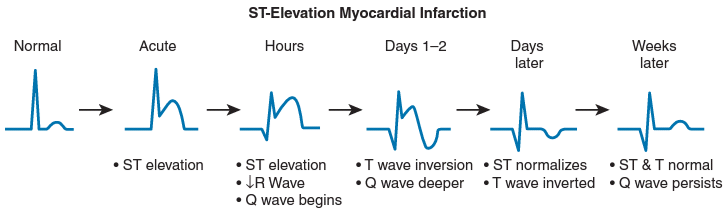 Evolusi EKG pada STEMI