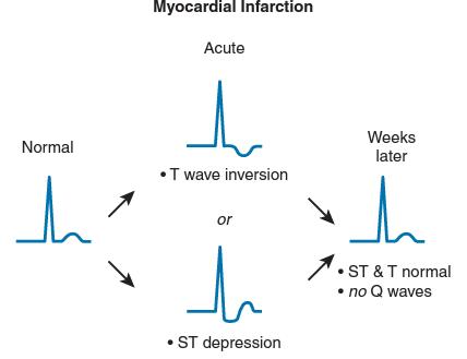 Perubahan EKG pada NSTEMI dan UAP