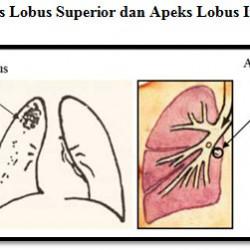 Tuberkulosis: diagnosis dan tatalaksananya