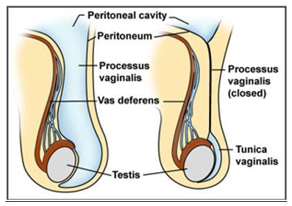 Penutupan Processus Vaginalis