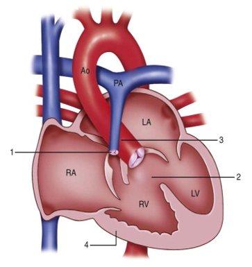 Fibrilasi Atrium: Diagnosis dan Tatalaksana