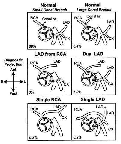 Anomali Arteri Koroner pada TOF