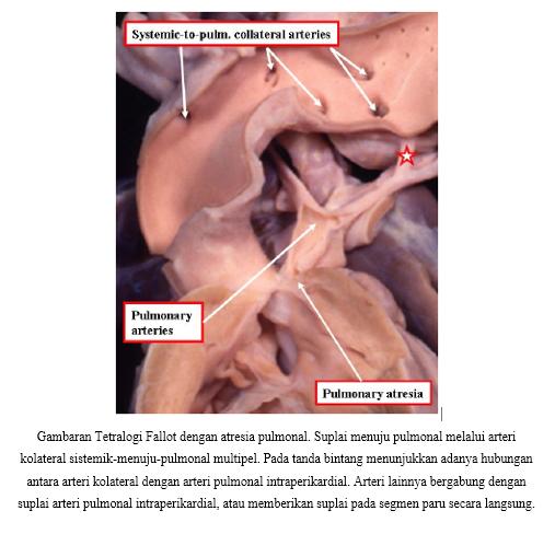Gambaran Tetralogi Fallot dengan Atresia Pulmonal