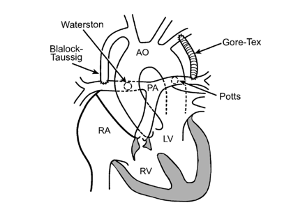 Prosedur paliatif pada pasien dengan defek kardiak sianotik dengan aliran darah pulmonal yang menurun