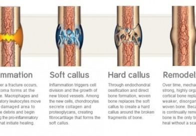 Mekanisme Penyembuhan Tulang
