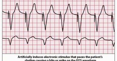 Penanganan Kegawatdaruratan Jantung: Bradikardia