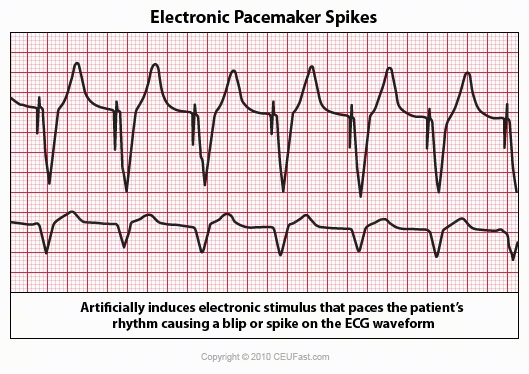 50_electronic_pacemaker_spikes
