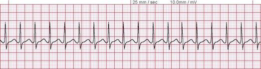 Takikardi Supraventrikuler (Supraventricular Tachycardia). QRS ≤ 0.12 detik)