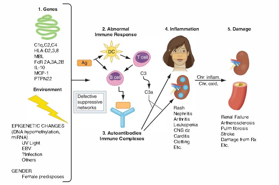 patogenesis-sle